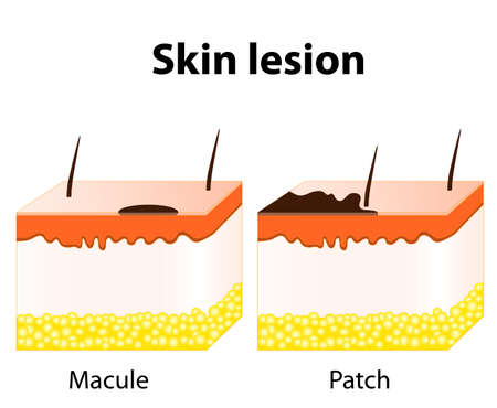 skin color: Skin lesion. Macule is a change in surface skin color, without elevation. Patch - a large macule Illustration