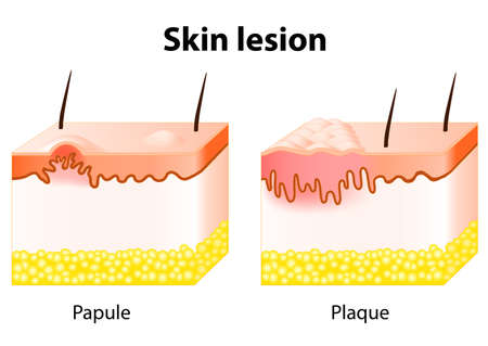 lesions: Papule and Plaque. Skin lesion. Papule is a solid elevation of skin and  accumulation of material in the dermis with no visible fluid. Plaque - confluence of papules Illustration