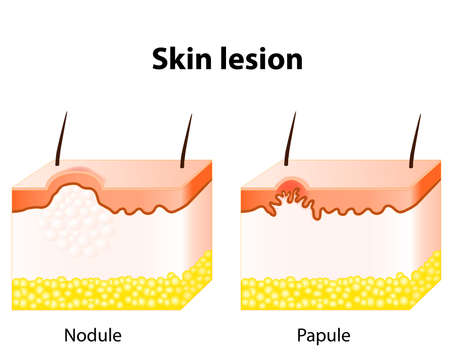 Papule and Nodule. Skin lesion. Papule is a solid elevation of skin and  accumulation of material in the dermis with no visible fluid. A nodule most frequently centered in the dermis or subcutaneous fat