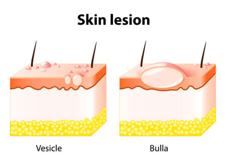 lesions: Vesicle and Bulla. Skin lesion. Bulla is a large vesicle containing fluid Illustration