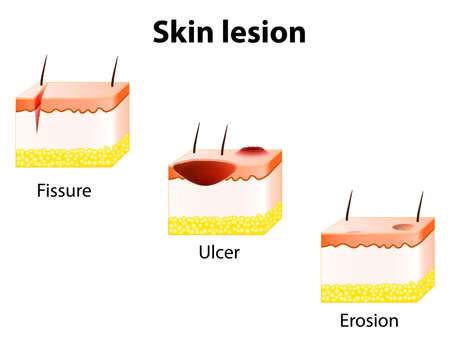 L'érosion, l'ulcère et fissures. lésion de la peau.