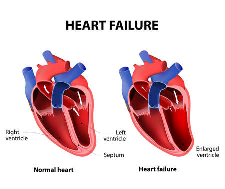 Heart failure or congestive heart failure 矢量图像