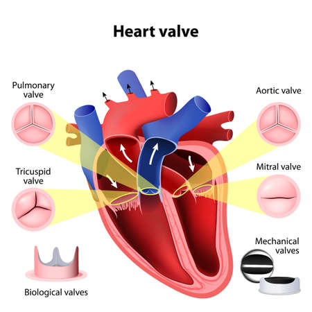 biology: Heart valve surgery. Pulmonary, Tricuspid, Aortic and Mitral valve. Biological valves and Mechanical valves
