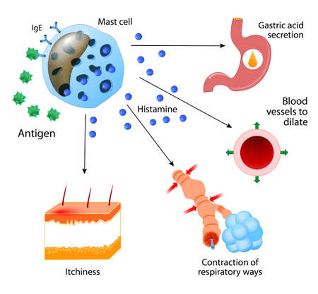 reaction: Histamine. local immune responses. Allergic reaction Illustration
