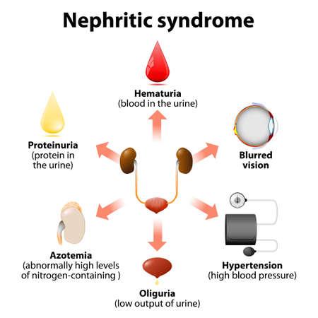 syndrome néphrétique ou syndrome néphrotique aigu. la maladie de Reins Vecteurs