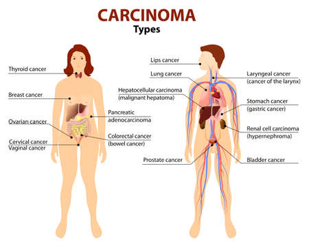 colon cancer: Carcinoma. Type of cancer. Woman and man silhouette with highlighted internal organs.