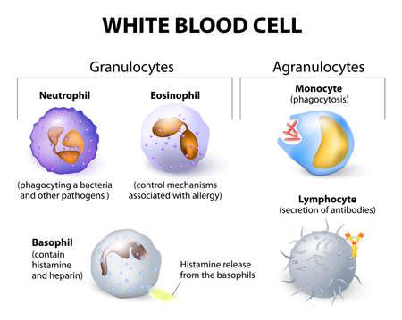 globulos blancos: Tipos de células blancas de la sangre. Infografía.