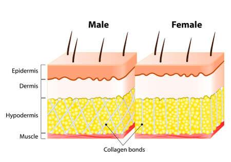 Mannelijke en vrouwelijke huid. Structuur en anders. Man's epidermis is veel dikker dan een vrouw is. Bij vrouwen, het collageen obligaties verticaal. Bij mannen, waarbij het compartiment muren lopen diagonaal in een kriskraspatroon