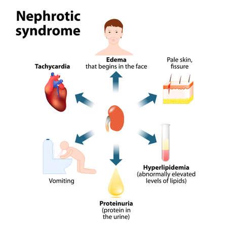 Nephrotisches Syndrom. Nierenerkrankung. Anzeichen und Symptome. klinische und Laborbefunde in Nephrotisches Syndrom Vektorgrafik