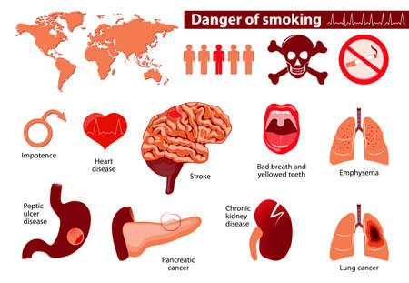 fumar peligro. Los signos, síntomas y factores de riesgo de la etapa. infografía médica. Establecer los elementos y símbolos para el diseño.