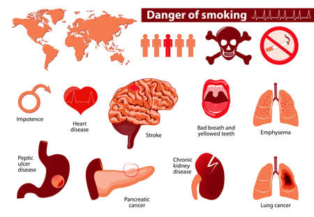 danger smoking. Signs, symptoms, stage and risk factors. Medical infographic. Set elements and symbols for your design. Vettoriali