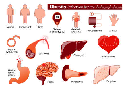 Otyłość i nadwaga infografika. Wpływ na zdrowie. infografika medyczny. Ustaw elementy i symbole dla projektu.