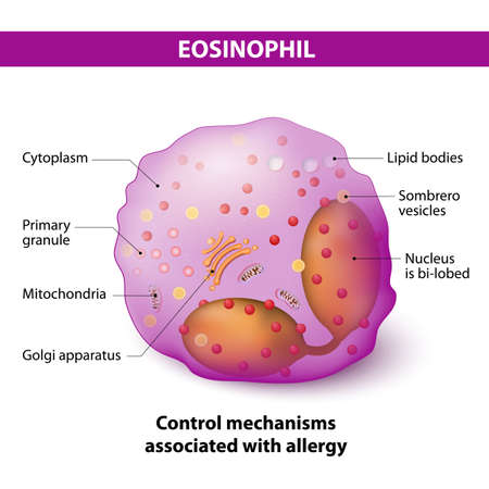 eosinofiele granulocyten. type witte bloedcellen die verantwoordelijk zijn voor de bestrijding van meercellige parasieten en bepaalde infecties in gewervelde dieren, controleren ze ook mechanismen in verband met allergie en astma. Eigenschappen en structuur van lymfocyten