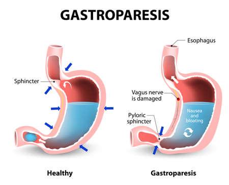 Gastroparese of vertraagde maaglediging. Visuele vergelijking van een gezonde maag- en maag met gastroparese.
