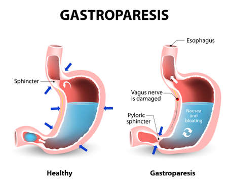 Gastroparesis or delayed gastric emptying. Visual comparison of healthy gastric and stomach with Gastroparesis.