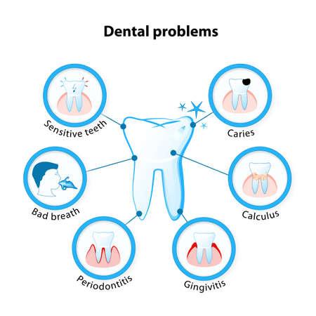 dental problem. Tooth disease: sensitive teeth, caries, calculus, gingivitis, periodontitis and bad breath