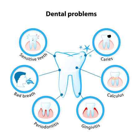 periodontitis: dental problem. Tooth disease: sensitive teeth, caries, calculus, gingivitis, periodontitis and bad breath