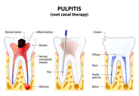 roots: Pulpitis. root canal therapy. Infected pulp is removed from the tooth and the space occupied by it is cleaned and filled with a gutta percha. Post inserted to support crown