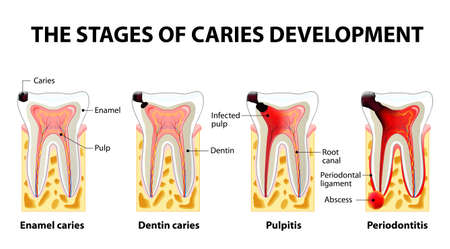 stages of caries development. Dental disease: caries, pulpitis and periodontitis