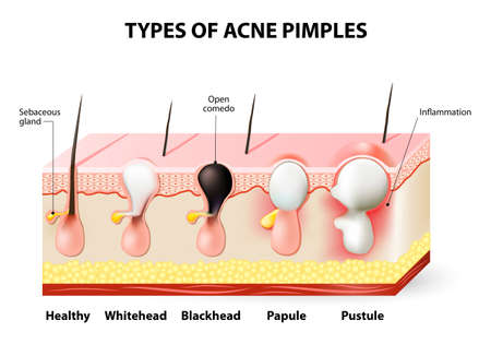 sebum: Types of acne pimples. Healthy skin, Whiteheads and Blackheads, Papules and Pustules Illustration