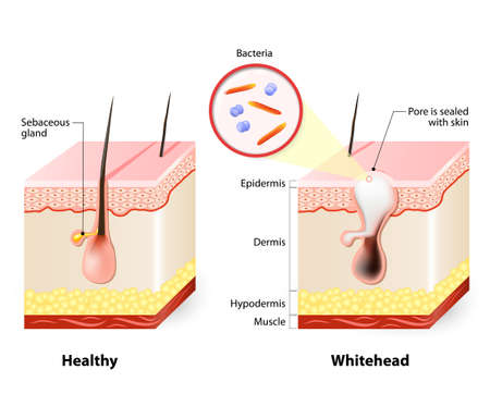 sebaceous gland: Healthy skin and Whiteheads. Types of acne pimples Illustration