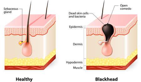 にきびの種類。健康な皮膚と黒ずみ