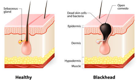 Types of acne pimples. Healthy skin and Blackheads