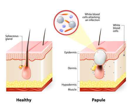 epidermis: Types of acne pimples. Healthy skin and Papules