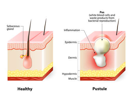 sebum: Types of acne pimples. Healthy skin and Pustules