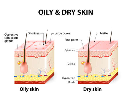 sectional: Oily & dry skin. Different. Human Skin types and conditions. A diagrammatic sectional view of the skin. Illustration