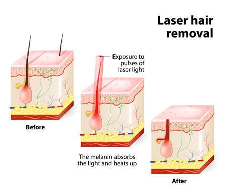 レーザーは、それを損傷することがなく肌に浸透する目に見えない光を発する