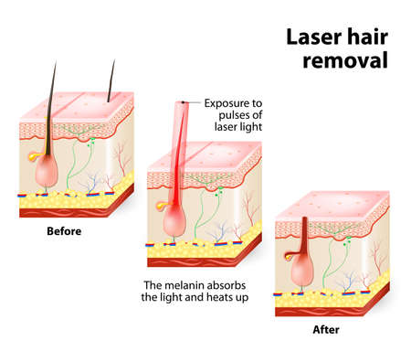 light skin: The laser emits an invisible light which penetrates the skin without damaging it