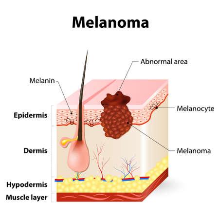 Melanom oder Hautkrebs. Diese seltene Art von Hautkrebs stammt von Melanozyten. Schichten der menschlichen Haut. Standard-Bild - 55495723