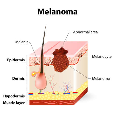 lesions: Melanoma or skin cancer. This rare type of skin cancer originates from melanocytes. layers of the human skin. Illustration