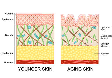 subcutaneous: younger skin and aging skin. elastin and collagen. A diagram of younger skin and aging skin showing the decrease in collagen and broken elastin in older skin. Illustration