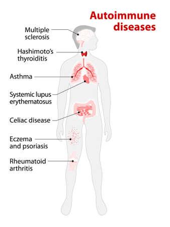 alveolos pulmonares: Los tejidos del cuerpo humano afectados por ataque autoinmune. Enfermedades y órganos en la silueta del hombre Vectores