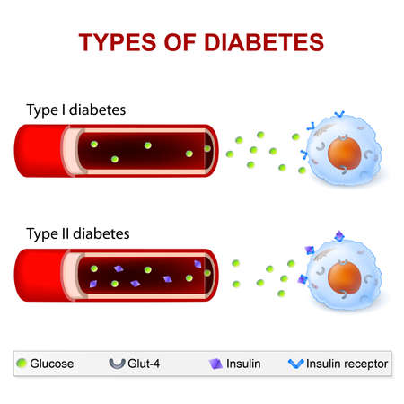 Arten von Diabetes. Typ 1 und Typ 2 Diabetes Mellitus. Insulin-abhängige Diabetes Mellitus und Nicht insulinabhängiger Diabetes Mellitus. Insulinresistenz und eine unzureichende Insulinproduktion. Standard-Bild - 56717327