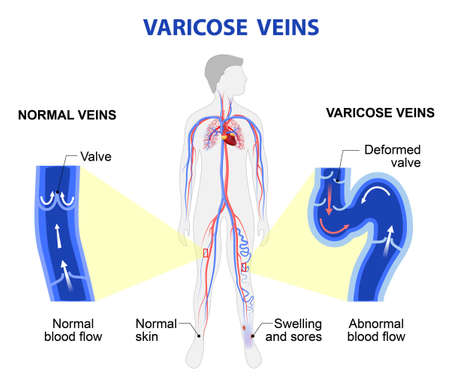 ulceration: Varicose vein forms in a leg. Normal vein and varicose vein. Illustration