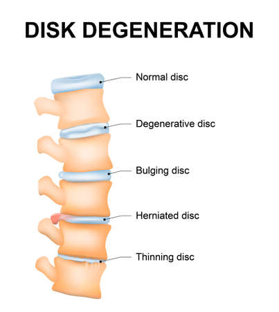 spinal conditions: Disc degeneration its the normal wear and tear process of aging spine. intervertebral discs lose their flexibility, elasticity, and shock-absorbing characteristics.