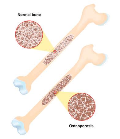 Osteoporose - is een ziekte van de botten die leidt tot een verhoogd risico op fracturen. Vector Vector Illustratie