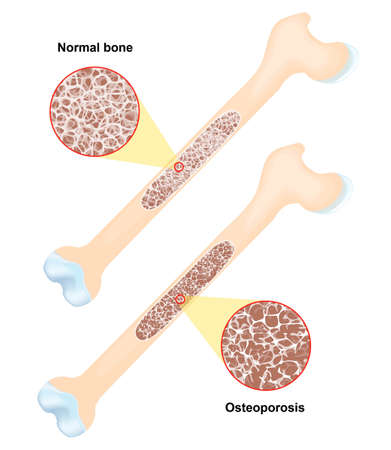 Osteoporoza - jest to choroba kości, co prowadzi do zwiększonego ryzyka złamań. Wektor Ilustracje wektorowe