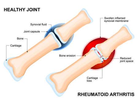 Normalna stawów i reumatoidalnym zapaleniu stawów. Reumatoidalne zapalenie stawów (RZS) jest zapalnego stawów, która zazwyczaj występuje połączenie. choroby autoimmunologiczne. Układ odpornościowy mylnie atakuje zdrowe tkanki.