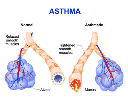 bronchioles: Asthma is a chronic inflammatory disease of the airways that is characterized by narrowing of the airways and dyspnea, wheezing, and coughing.