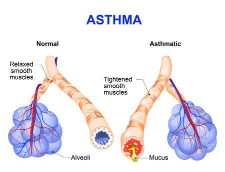 alveolos pulmonares: El asma es una enfermedad inflamatoria crónica de las vías respiratorias que se caracteriza por el estrechamiento de las vías respiratorias y disnea, sibilancias y tos.