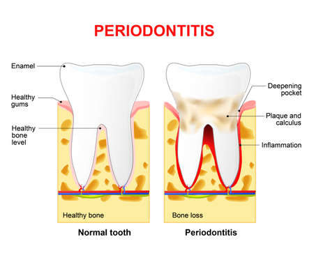 Periodontitis is a inflammatory diseases affecting the periodontium, the tissues that surround and support the teeth Vettoriali