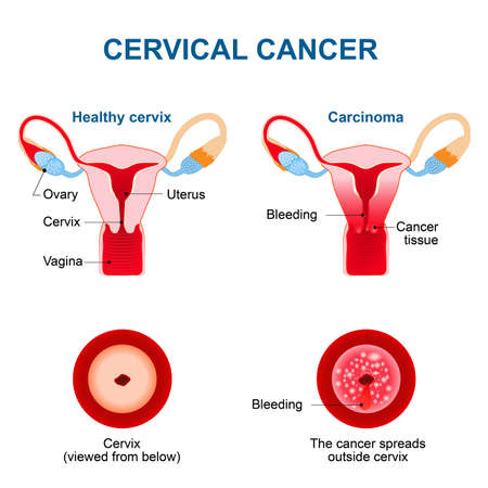 female reproductive system: Cervical Cancer. Carcinoma of Cervix. Malignant neoplasm arising from cells in the cervix uteri. Vaginal bleeding. Vector diagram