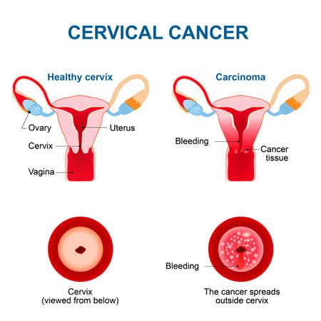Gebärmutterhalskrebs. Karzinom des Gebärmutterhalses. Bösartige Neubildung von Zellen im Gebärmutterhals entstehen. Blutungen aus der Scheide. Vektordiagramm