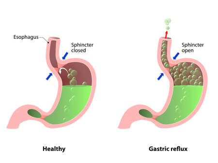 esófago: enfermedad estomacal: eructos, acidez o reflujo. La ilustración de estómago, esófago y del esfínter. Anatomía humana