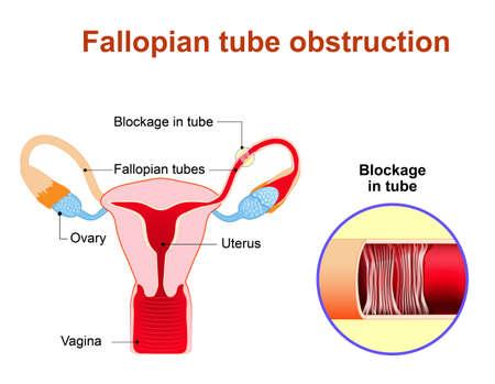 Fallopian Tube Obstruction Or Blocked Fallopian Tubes. A Major ...