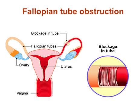 infertility: Fallopian tube obstruction or Blocked fallopian tubes. A major cause of female infertility.  Uterus and uterine tubes. Human anatomy. female reproductive system. Vector diagram.